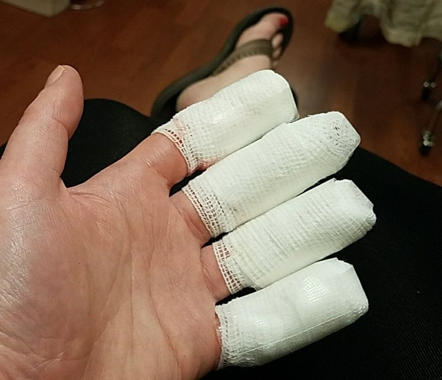 Light skinned left hand with individually bandaged fingers.